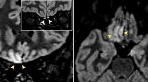 """Imágenes de resonancia magnética muestran signos de """"invasión cerebral viral"""" en paciente con Covid-19"""