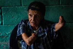 Consuelo, la abuela sin brazos que lucha contra la crisis en el barrio más peligroso de Venezuela (Video)