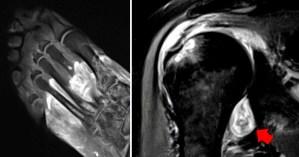 El Covid-19 puede causar gangrena, provocando que el cuerpo se ataque a sí mismo, revela un nuevo estudio