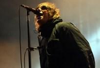 FOTO: Así quedó el rostro de Liam Gallagher, excantante de Oasis, tras caer de un helicóptero